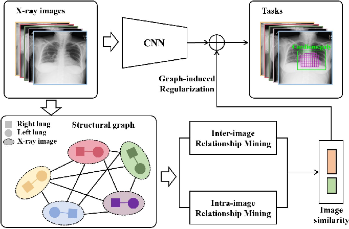 Figure 1 for GREN: Graph-Regularized Embedding Network for Weakly-Supervised Disease Localization in X-ray images