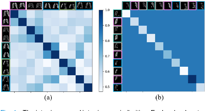 Figure 4 for GREN: Graph-Regularized Embedding Network for Weakly-Supervised Disease Localization in X-ray images