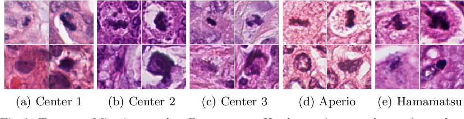 Figure 2 for Leveraging Unlabeled Whole-Slide-Images for Mitosis Detection