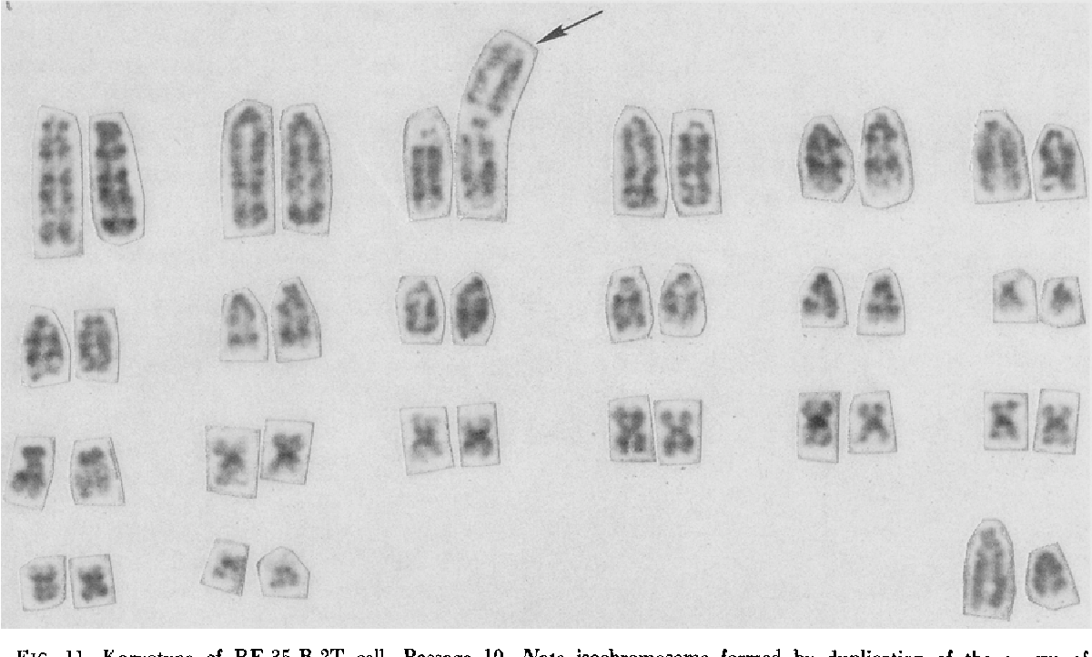 FIG. 11. Karyotype of RE-35,B-2T cell, Passage 10. Note isochromosome formed by duplication of the q arm of chromosome no. 3.