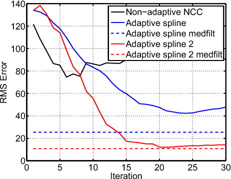 Figure 6 from Adaptive ultrasonic displacement estimation for