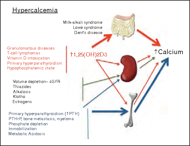 Ure 1 From New Insights In Regulation Of Calcium Homeostasis. Ure 1 Causes And Mechanisms Of Hypercalcemia Grf Glomerular Filtration Rate Pth. Wiring. Bones In Calcium Homeostasis Diagram At Scoala.co