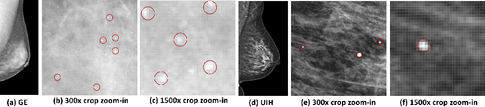 Figure 1 for mr2NST: Multi-Resolution and Multi-Reference Neural Style Transfer for Mammography
