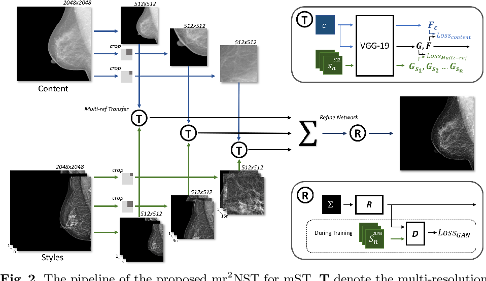 Figure 3 for mr2NST: Multi-Resolution and Multi-Reference Neural Style Transfer for Mammography