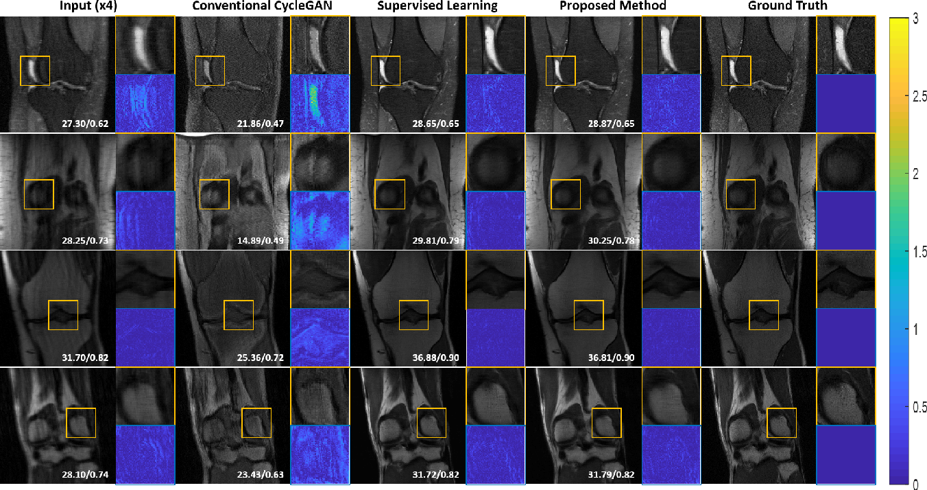 Figure 4 for Unpaired Deep Learning for Accelerated MRI using Optimal Transport Driven CycleGAN