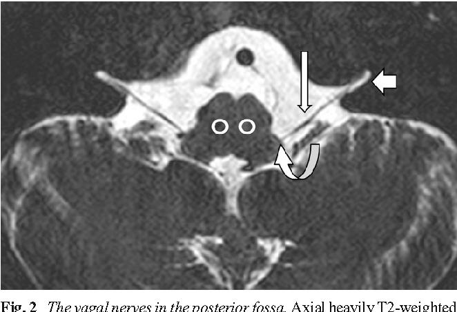 Vocal cord paralysis: anatomy, imaging and pathology - Semantic Scholar