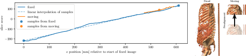 Figure 1 for Efficient Prealignment of CT Scans for Registration through a Bodypart Regressor