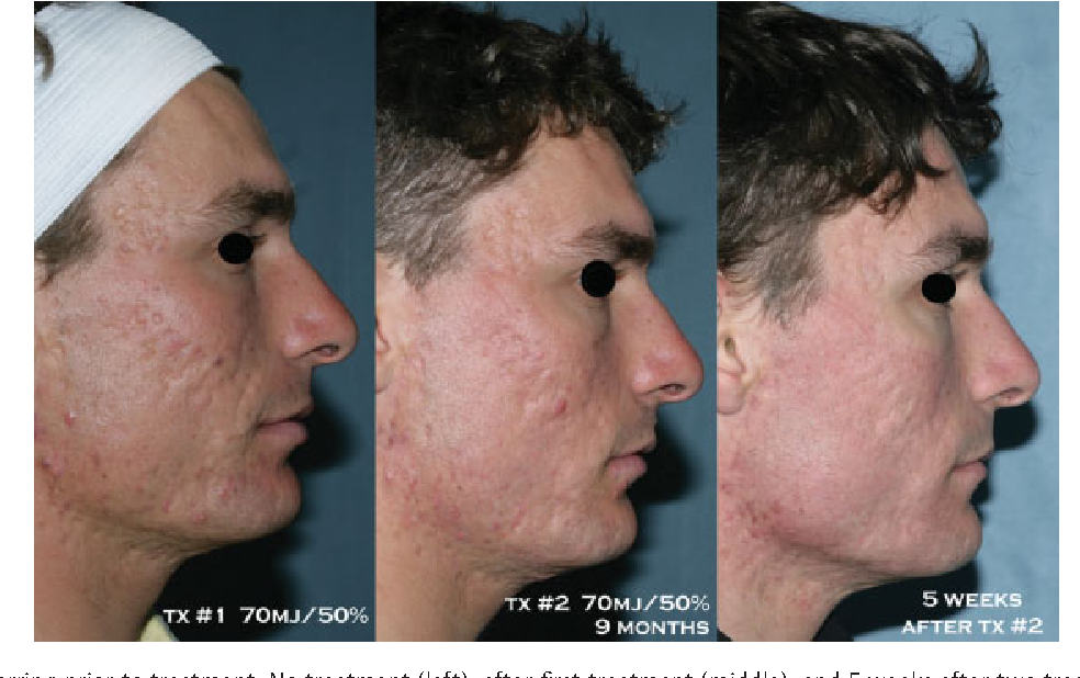 Figure 3 from Laser treatment of scars  - Semantic Scholar