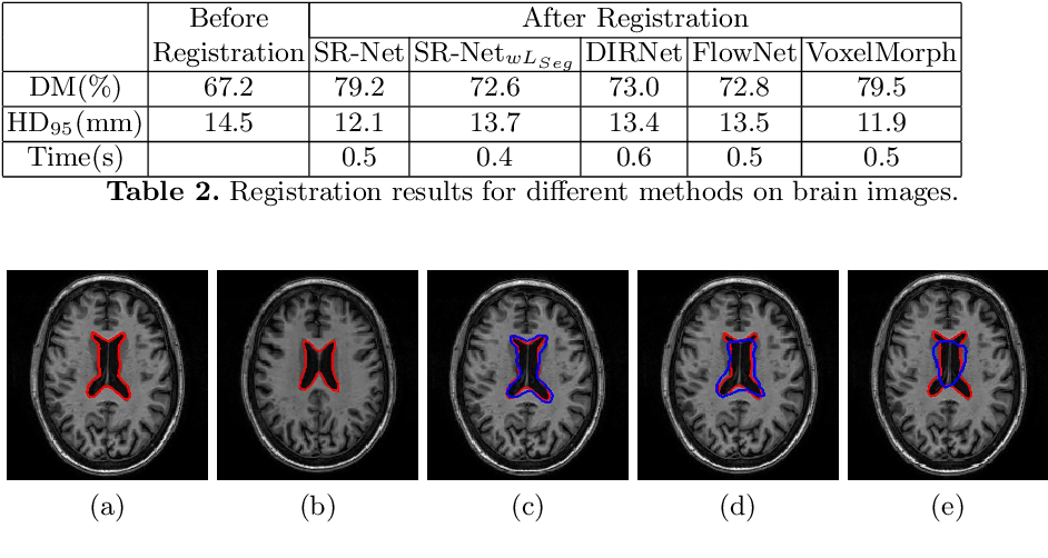 Figure 4 for Registration of Histopathogy Images Using Structural Information From Fine Grained Feature Maps