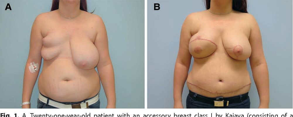 Polymastia and breast