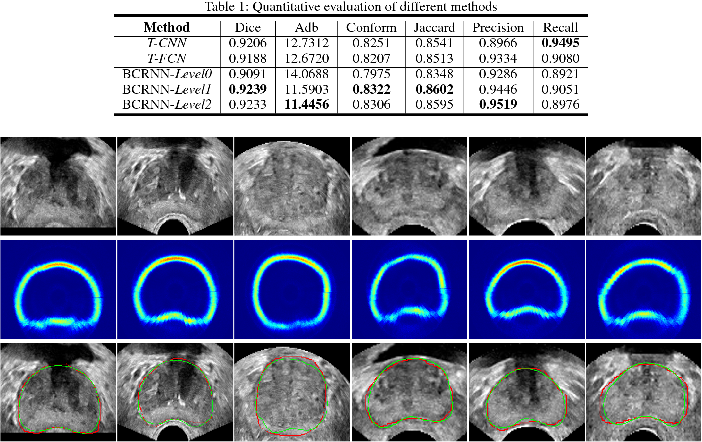 Figure 2 for Fine-grained Recurrent Neural Networks for Automatic Prostate Segmentation in Ultrasound Images