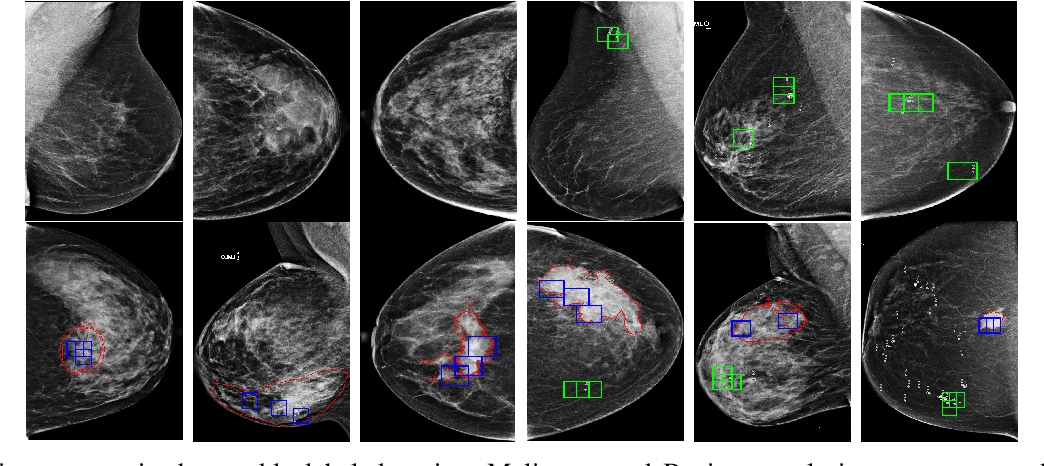 Figure 4 for A dual branch deep neural network for classification and detection in mammograms