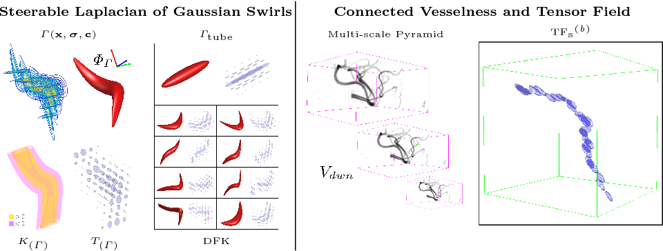 Figure 1 for VTrails: Inferring Vessels with Geodesic Connectivity Trees