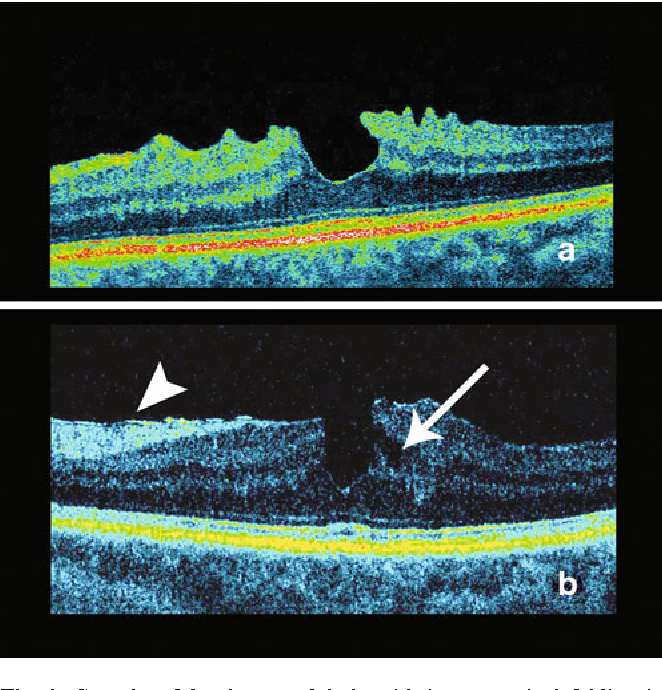 Evolution From Macular Pseudohole To Lamellar Hole