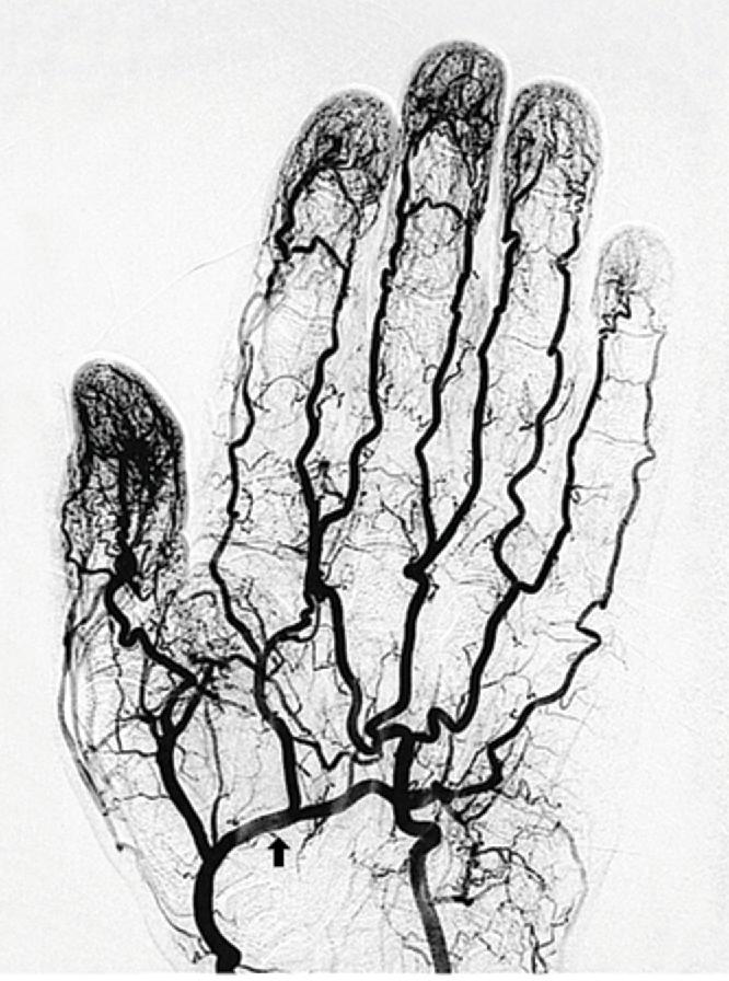 Functional Vascular Anatomy of the Brain - Semantic Scholar