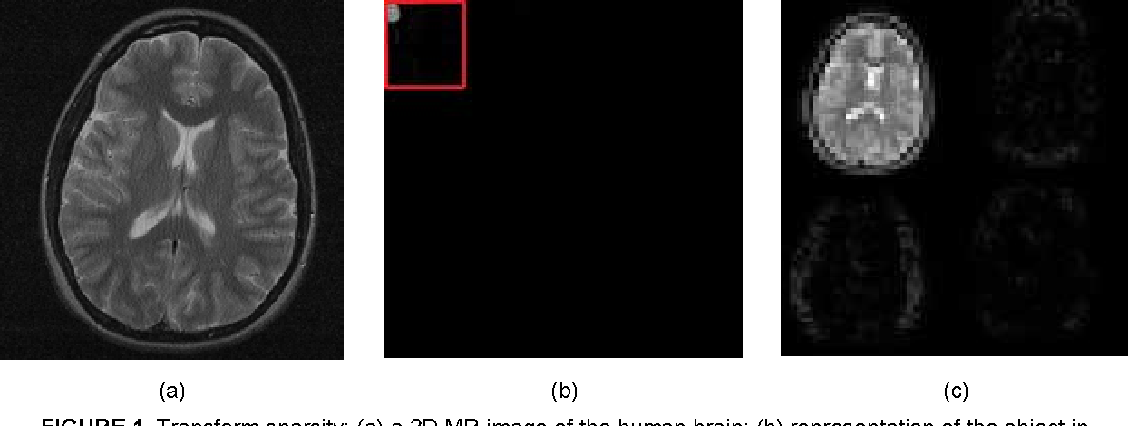 FIGURE 1. Transform sparsity: (a) a 2D MR image of the human brain; (b) representation of the object in 2D Daubechies wavelet transform domain; (c) a magnified view of the wavelet coefficients shown in the red square in (b)