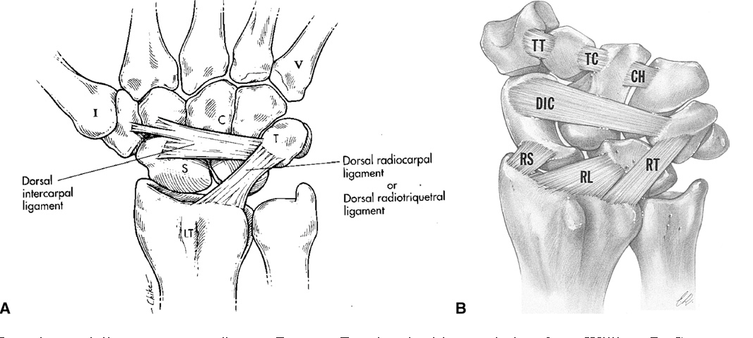 Figure 5 From Osseous And Ligamentous Scaphoid Anatomy Part I A