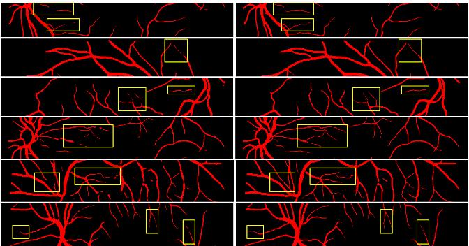 Figure 4 for ErrorNet: Learning error representations from limited data to improve vascular segmentation