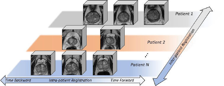 Figure 3 for Longitudinal Image Registration with Temporal-order and Subject-specificity Discrimination