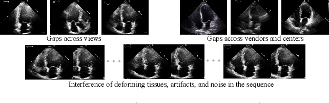Figure 1 for Recurrent Aggregation Learning for Multi-View Echocardiographic Sequences Segmentation