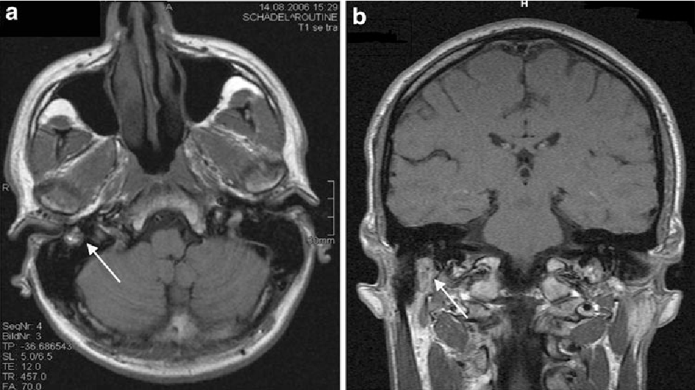 Fig. 3 Axial (a) and coronal (b) T1-weighted MRI with gadolinium enhancement, showing contrast uptake in the mastoid part of the facial nerve canal in the right petrous bone (arrow)