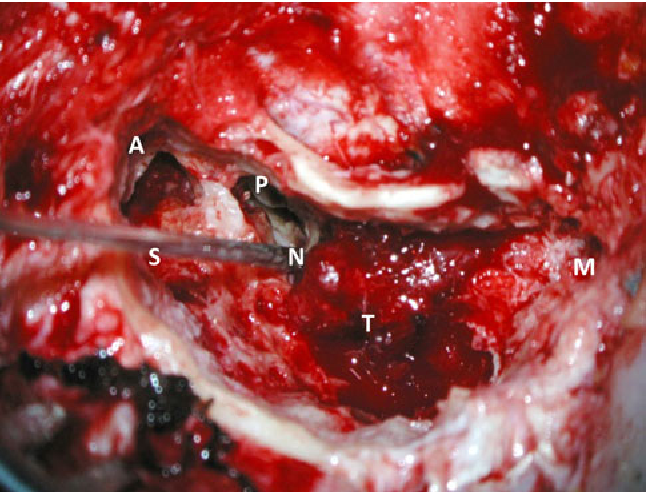 Fig. 4 The intraoperative site during exploratory mastoidectomy on the right side. A antrum, M tip of the mastoid, N facial nerve, P posterior tympanotomy, S stimulation electrode, T tumor