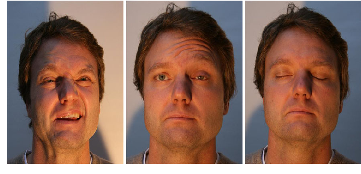 Fig. 6 The postoperative facial nerve results, showing House-Brackmann index III–IV conditions on the right side 4 years after primary facial nerve reconstruction using a great auricular nerve interposition graft
