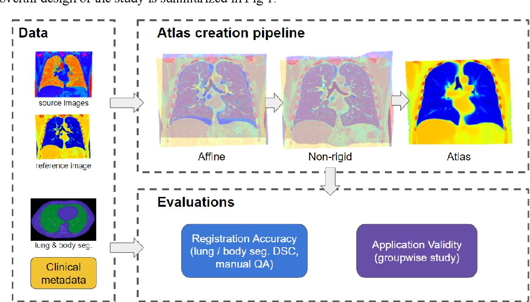 Figure 1 for Development and Characterization of a Chest CT Atlas