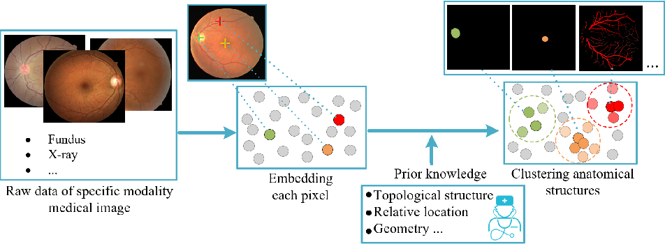 Figure 1 for Unsupervised Learning of Local Discriminative Representation for Medical Images