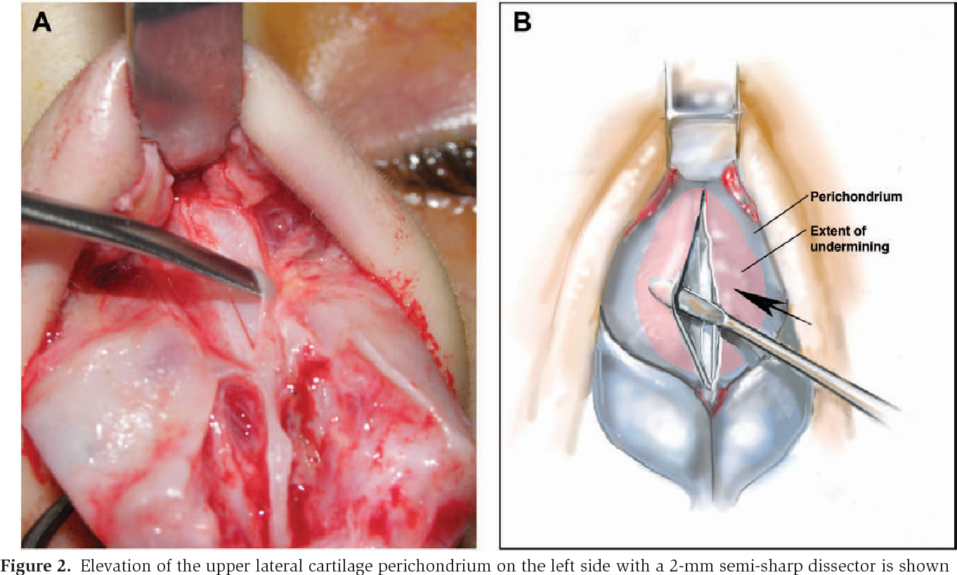 Concurrent Elevation Of The Upper Lateral Cartilage Perichondrium