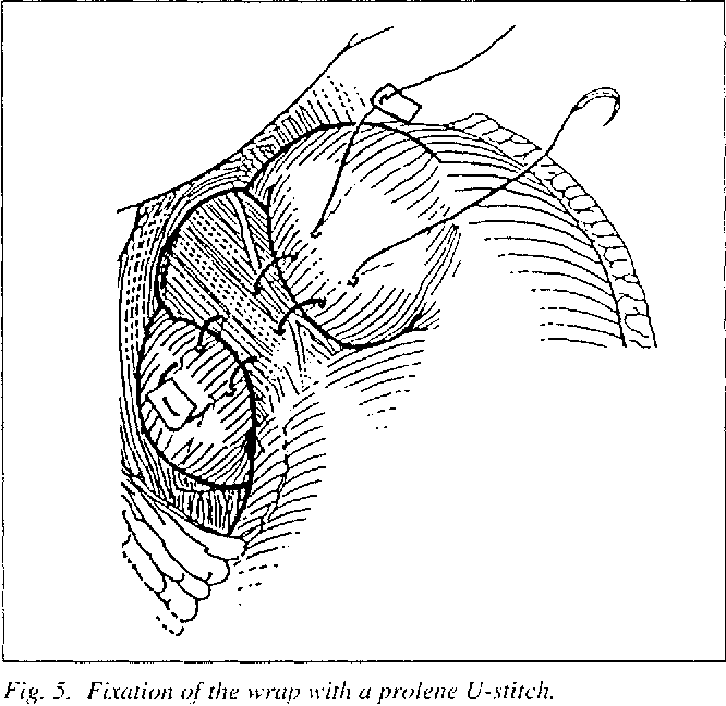 Standard Technique For Laparoscopic Nissen And Laparoscopic Toupet