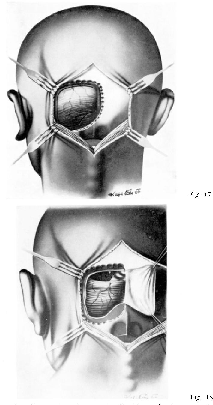 elektrophysiologische und vegetative phnomene bei stereotaktischen hirnoperationen umbach w riechert t