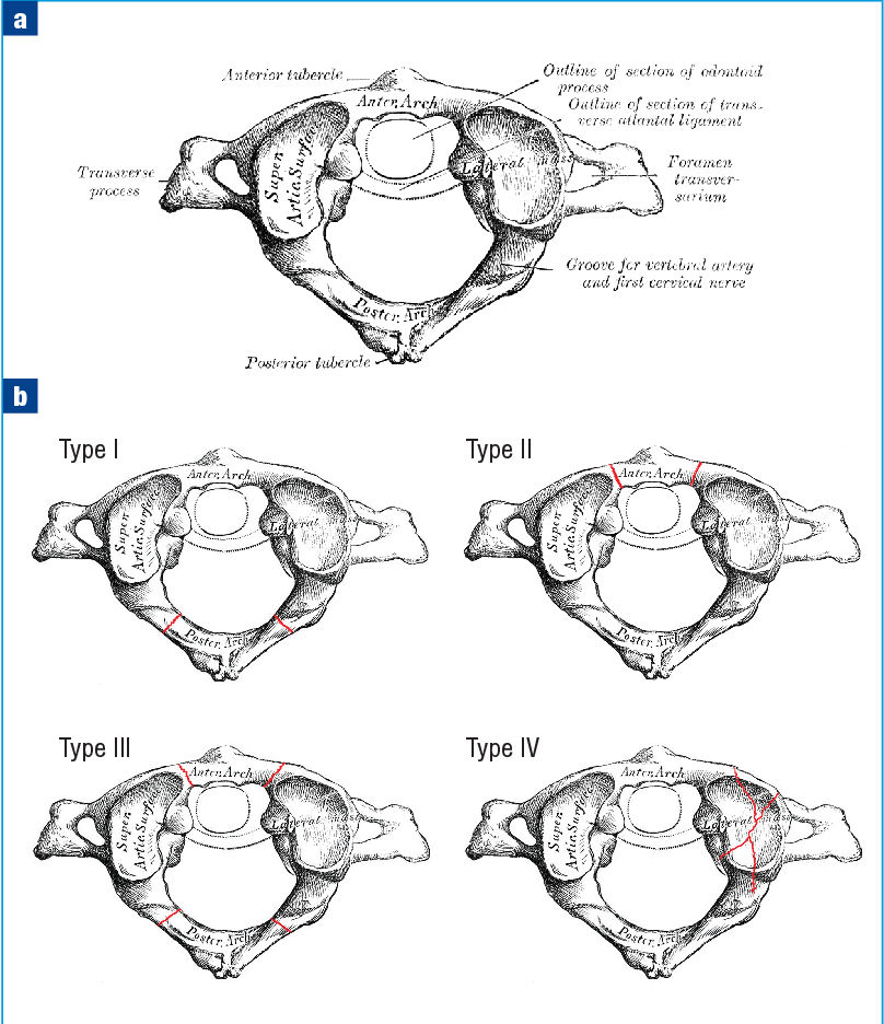 Figure 1 from Traumatic cervical spine fractures in the adult ...