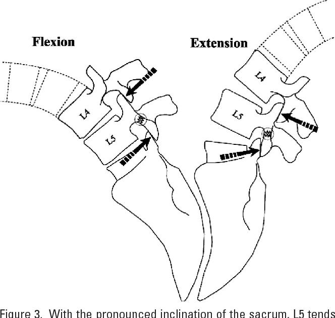Lumbar Facet Orientation In Spondylolysis A Skeletal Study
