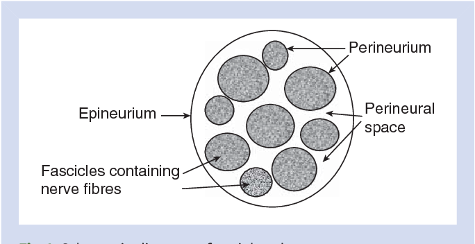 Figure 1 From Complications Of Peripheral Nerve Blocks Semantic