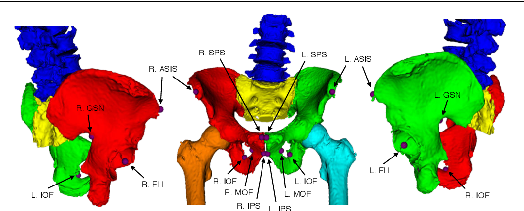 Figure 1 for Automatic Annotation of Hip Anatomy in Fluoroscopy for Robust and Efficient 2D/3D Registration