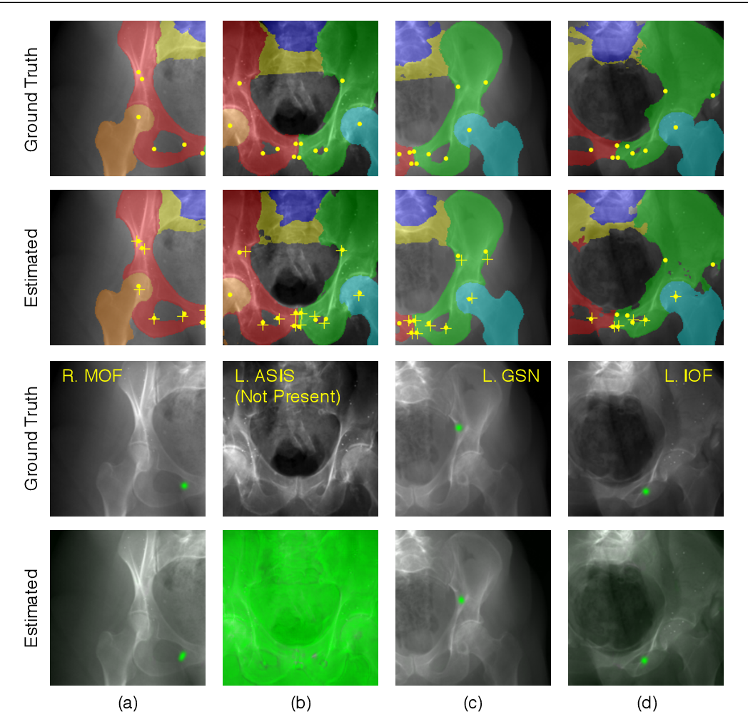 Figure 3 for Automatic Annotation of Hip Anatomy in Fluoroscopy for Robust and Efficient 2D/3D Registration