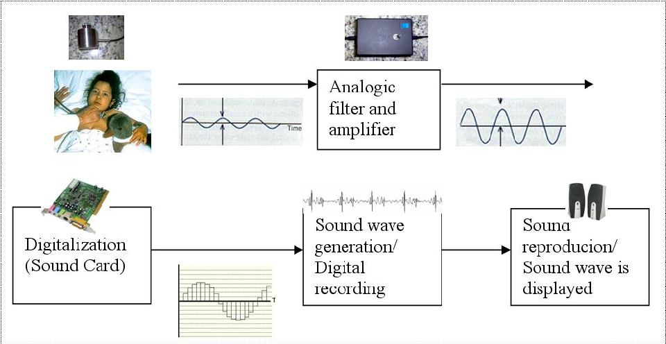 figure 4 2 from heart sound segmentation for digital stethoscopefigure 4 2 block diagram of our electronically enhanced stethoscope prototype depicted in figure 4 1 and