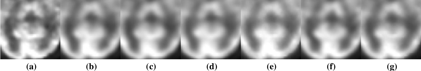 Figure 2 for Parameter Constrained Transfer Learning for Low Dose PET Image Denoising