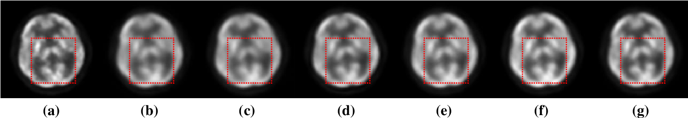 Figure 3 for Parameter Constrained Transfer Learning for Low Dose PET Image Denoising