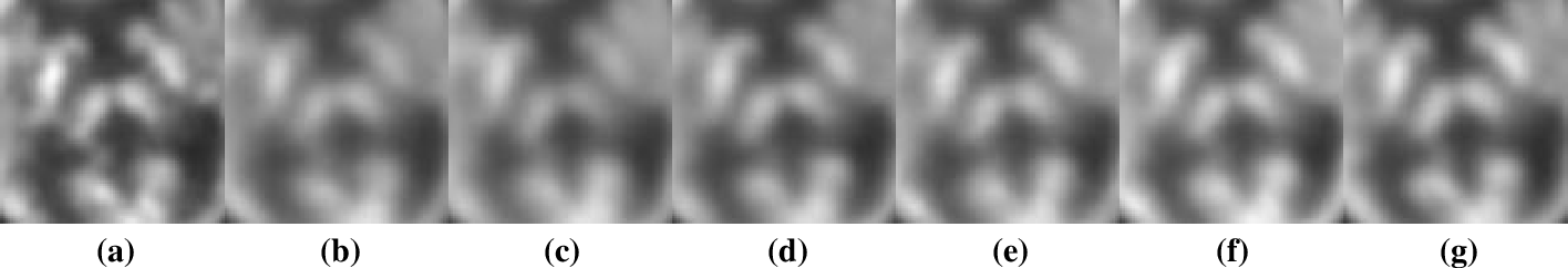 Figure 4 for Parameter Constrained Transfer Learning for Low Dose PET Image Denoising