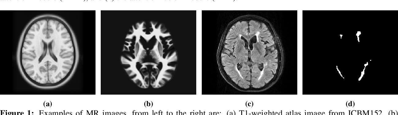 Figure 1 for Brain Atlas Guided Attention U-Net for White Matter Hyperintensity Segmentation