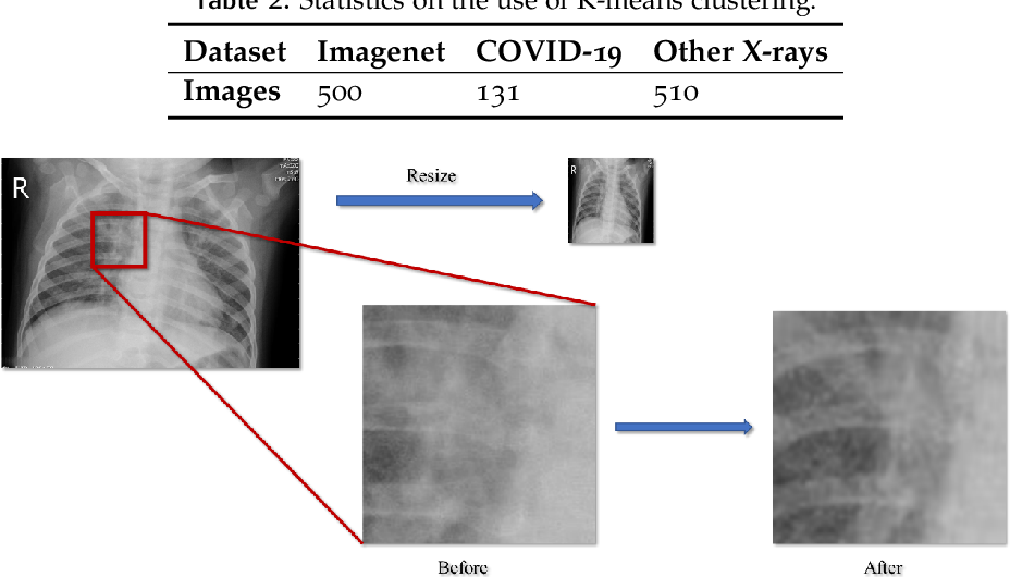 Figure 4 for A cascade network for Detecting COVID-19 using chest x-rays