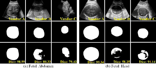 Figure 1 for Generalize Ultrasound Image Segmentation via Instant and Plug & Play Style Transfer