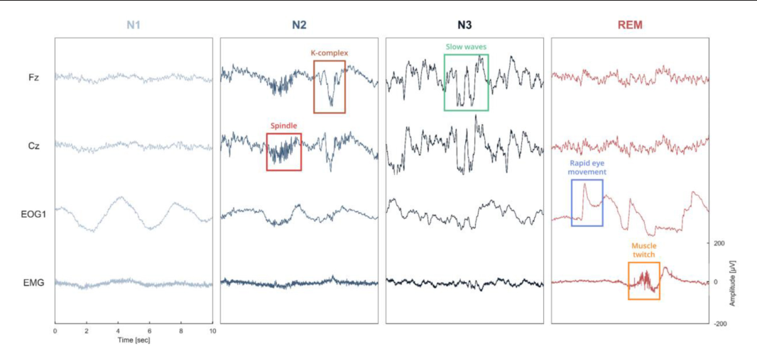 Sleep an open source python software for visualization analysis figure 1 ccuart Gallery
