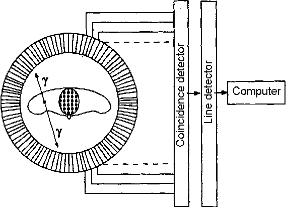 Figure 2.23: Functional cortex divisions according to [Schmidt and Thews, 1997] and [Dudel and Backhaus, 1996]. The cortex image is taken from [Scientific Learning Cooperation, 1999].