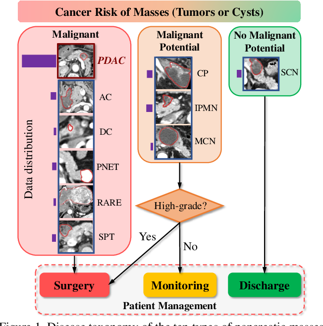 Figure 1 for 3D Graph Anatomy Geometry-Integrated Network for Pancreatic Mass Segmentation, Diagnosis, and Quantitative Patient Management