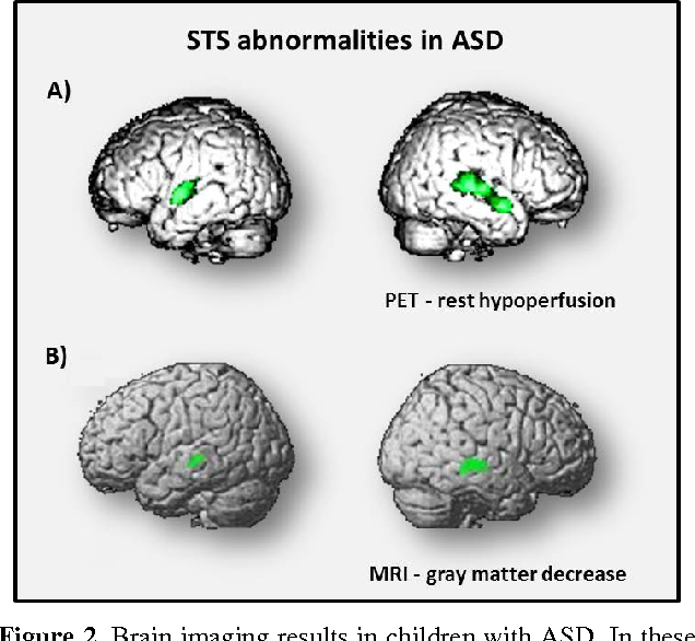 Autism Brain Circuit That Controls >> Figure 2 From Autism Social Cognition And Superior Temporal Sulcus