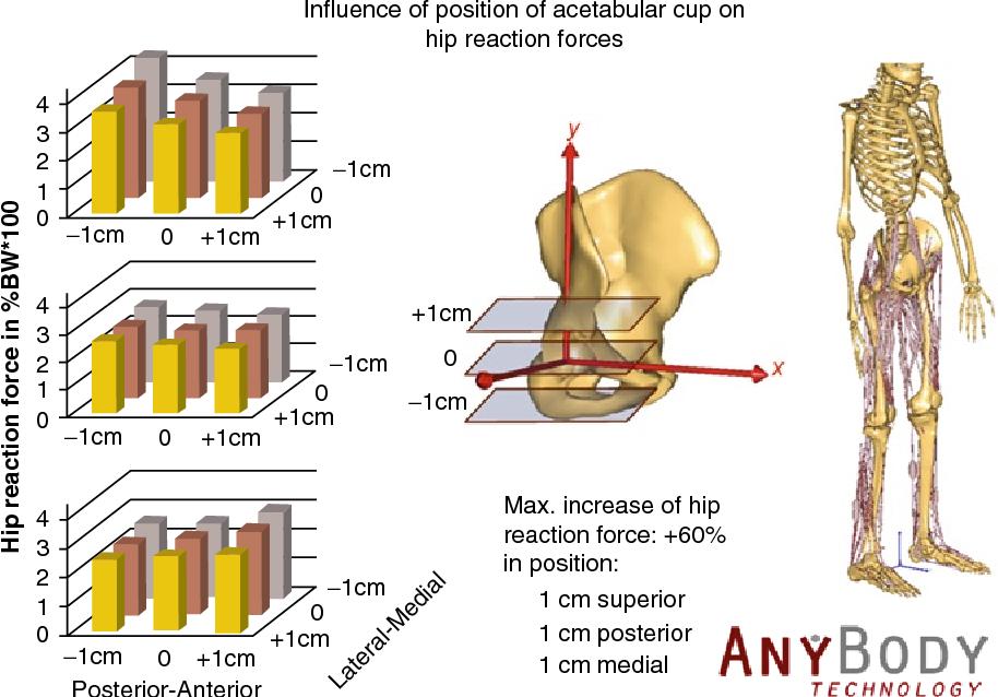 Biomechanics of Hip Arthroplasty - Semantic Scholar