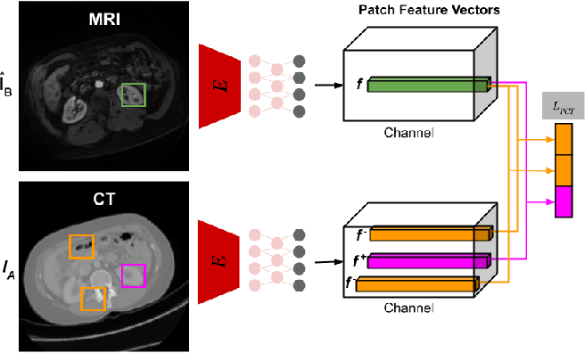 Figure 3 for Anatomy-Constrained Contrastive Learning for Synthetic Segmentation without Ground-truth